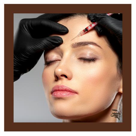 Você sabia que os manipulados podem ajudar a aumentar a duração do efeito do botox?