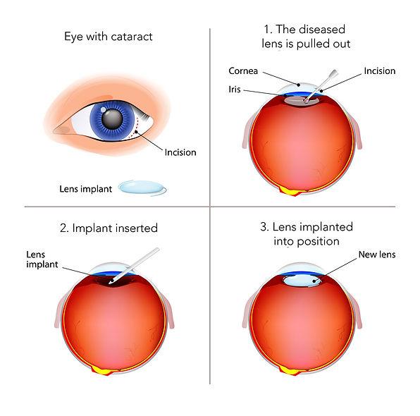 cataract-diagram.jpg