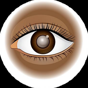A2020-cataractAsset 4.png