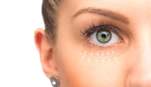 Eyelid Correction
