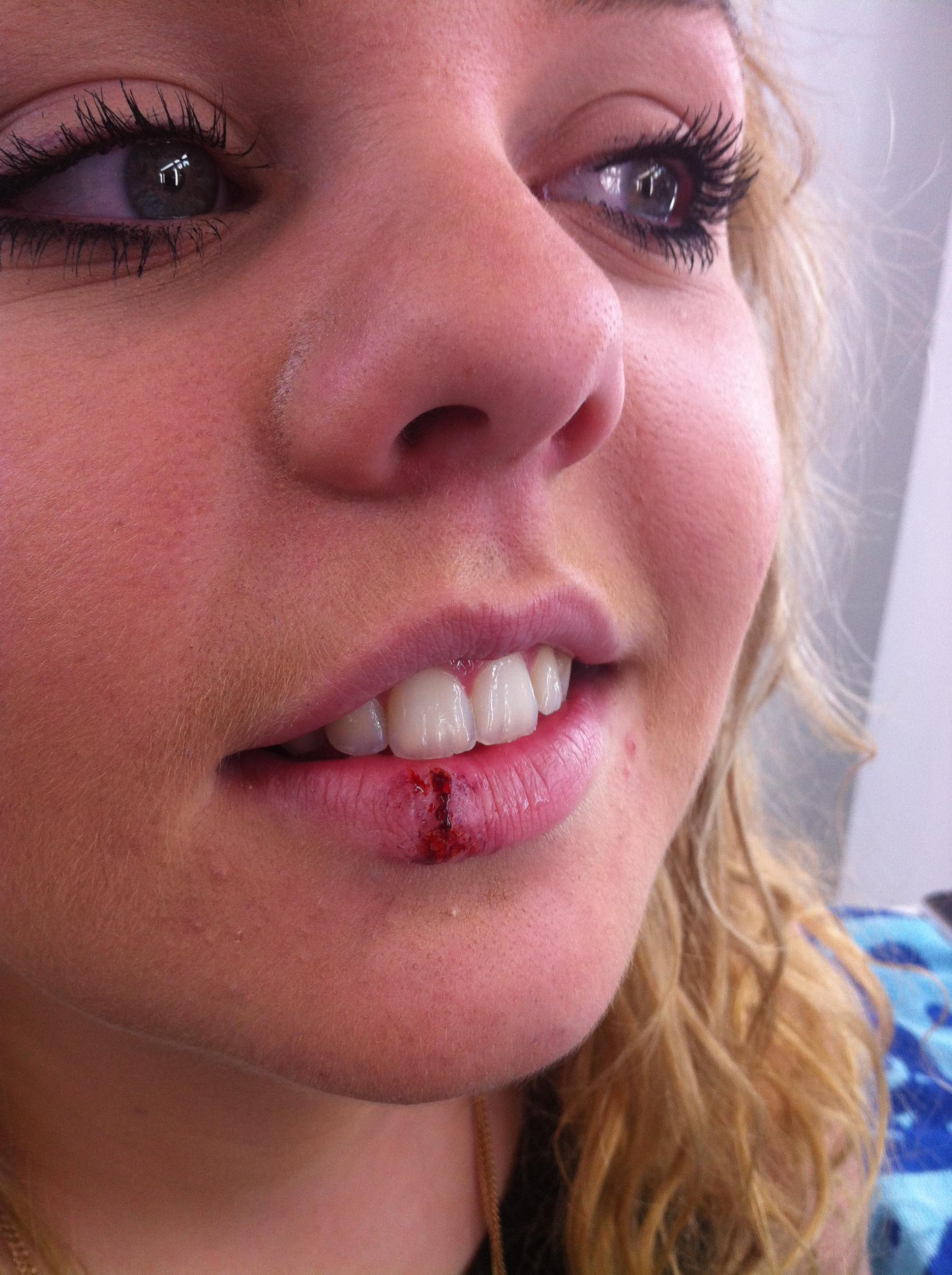 Cut lip