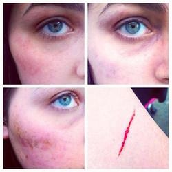Bruise & Cut