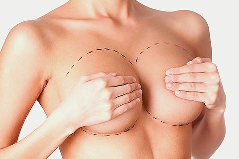 aumento-mamas.jpg