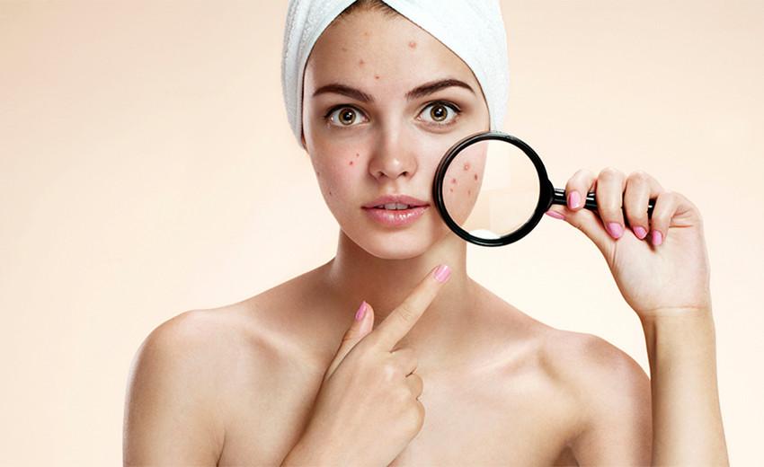 Mulher adulta com espinhas acne