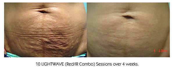 Flacid skin lightwave.jpg
