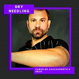 dry needling.png