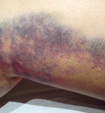 Bruise pre MLD