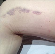 Bruise post MLD