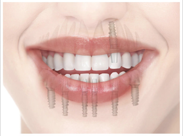 dental bridge implants