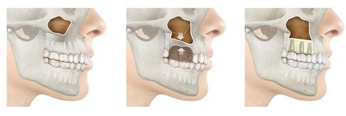 maxillary sinus lift surgery