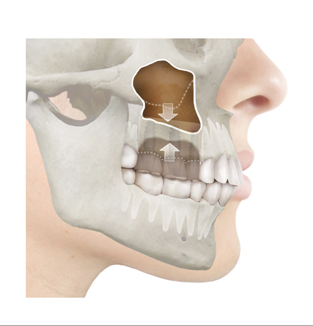 maxillary sinus lift surgery