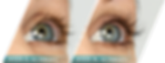 latisse, eye dr, doctor, arlington, va, northern va, virginia, ophthalmologist, optometrist