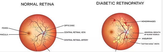 Capital Vision, Diabetic and Retinal Treatment