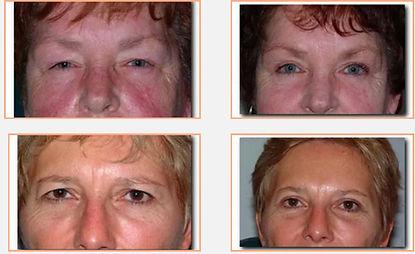 Capital Vision Eyelid Surgery