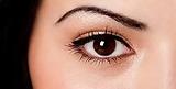 Capital Vision Skin Lesions