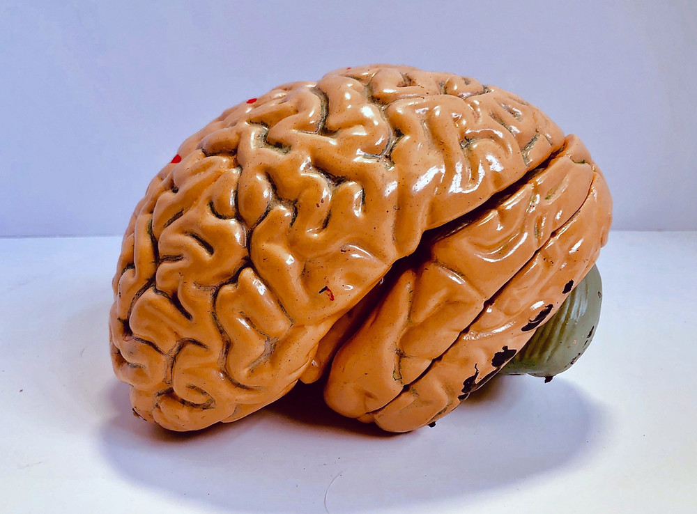 Big picture of a yellow brain on a purple background