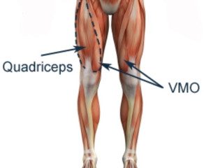 VMO exercise = stabilisation of your knee