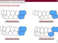 Entenda os benefícios da expansão maxilar no tratamento da Classe I, Classe II e Classe III
