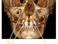 Protocolo de ativação para expansão rápida da maxila na dentição decídua e mista