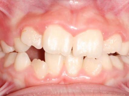 Expansão maxilar: entenda quando o procedimento é necessário