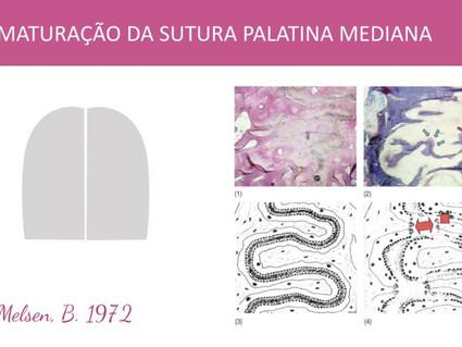 Até que idade a expansão rápida da maxila é efetiva na disjunção da sutura palatina mediana?