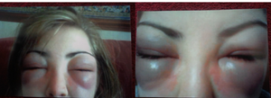 Allergic reaction to tinting