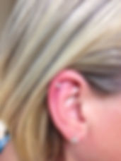 Ear piercing with Studex