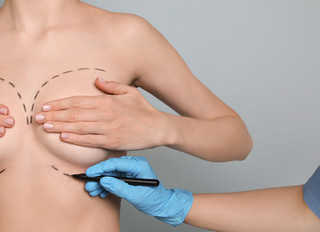 Preparing for Breast Augmentation