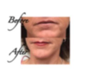 no-border-Lips2.jpg