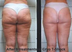 cryo butt before and after_edited.jpg