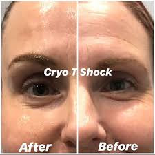 cryo t face before and after.jpg