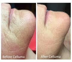 celluma 2.jpg