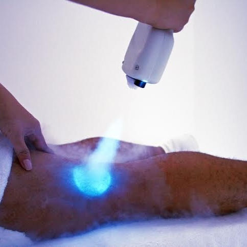 Isolated Cryotherapy (1 Session)