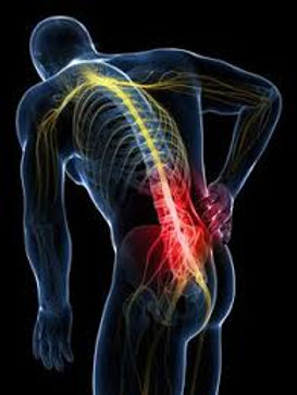 Back Pain from accidents