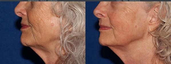 endymed intensif lower face & neck - 1 t