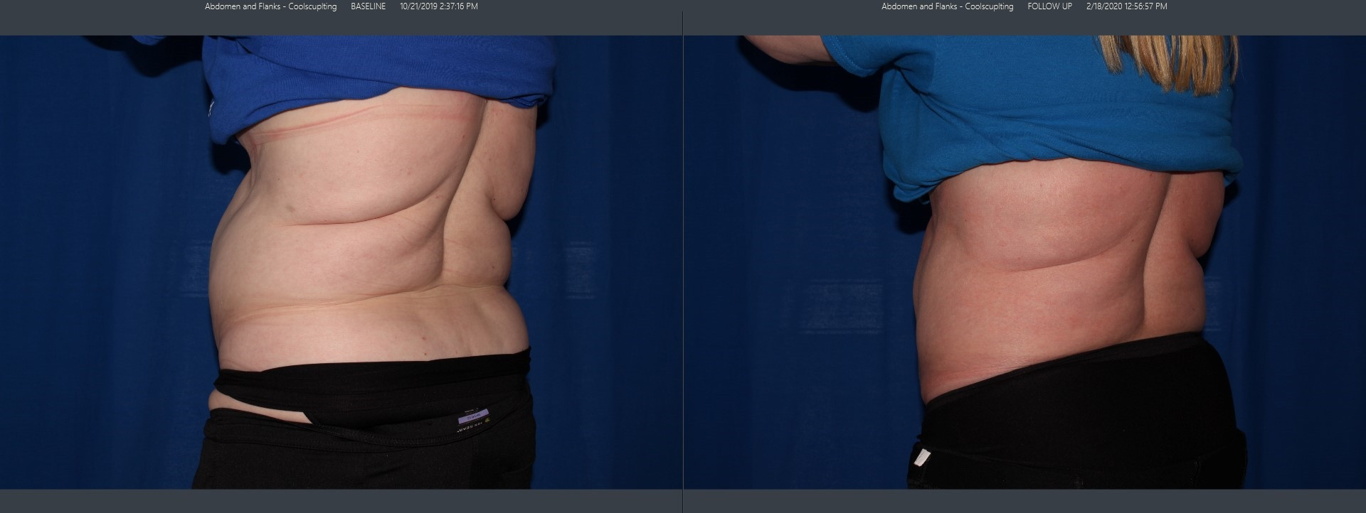 coolsculpting before and after abdomen flank stomach