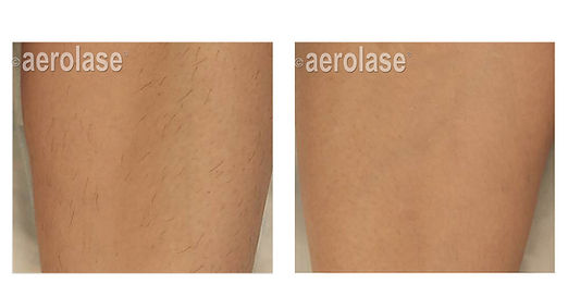 hair-removal-legs-geraskova.jpg