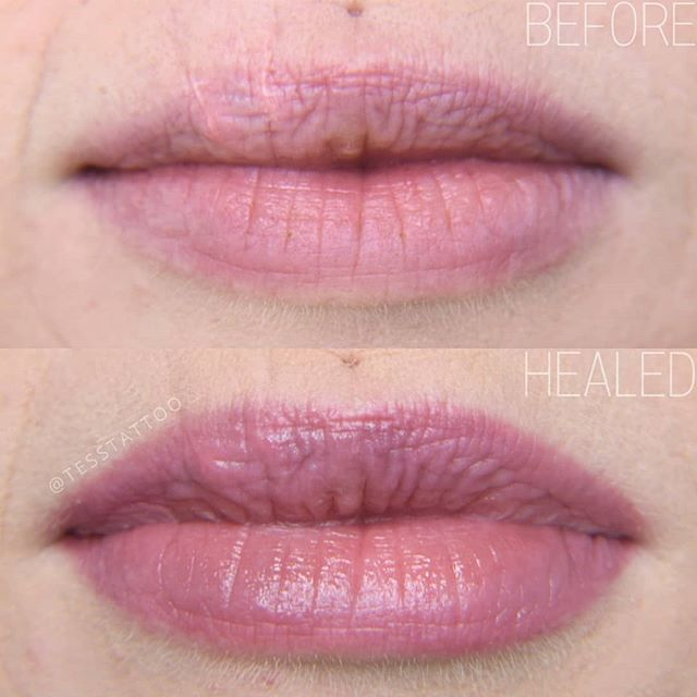 Lip blush can help mimimize the appearan