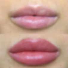 Lip%20tattoos%20are%20the%20up%20and%20coming%20beauty%20enhancement!%20%F0%9F%92%89__They%20are%20a