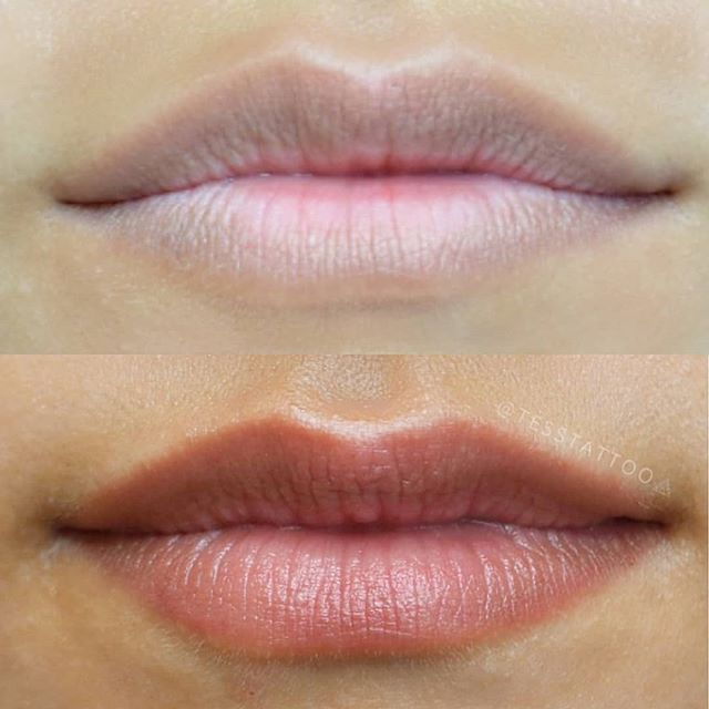 Before and after HEALED lips 💋_How beau