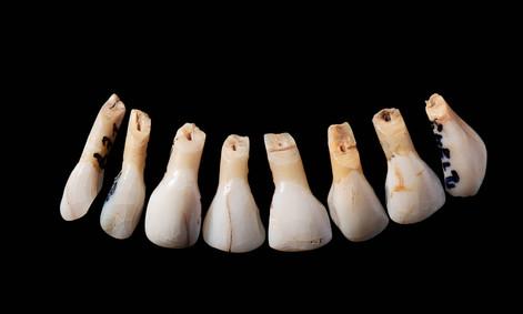 Halsschmuck aus Rentierzähnen aus der Rislisberghöhle