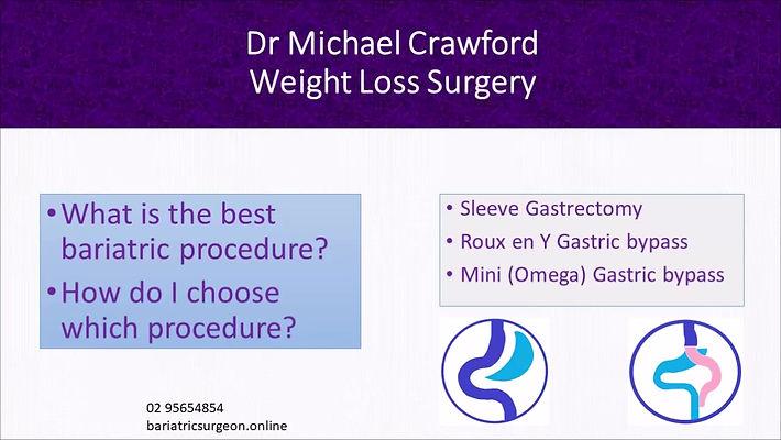 Which bariatric procedure?  Compare Gastric sleeve with Gastric bypass and mini gastric bypass
