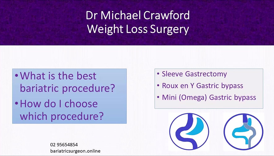 What is the best bariatric procedure. Compare sleeve gastrectomy with gastric bypass