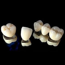Porcelain-Normal-Crown-and-Bridge.jpg