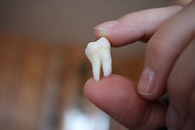 image-of-an-extracted-wisdom-tooth_t20_j