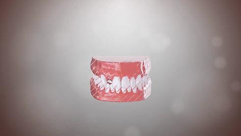 Single/Multiple Implant