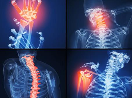 Mid-Week MOT: Arthritis