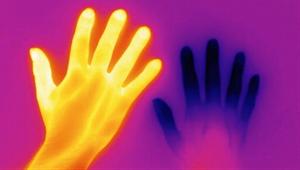 OsteoBlog - Cold Hands, warm heart
