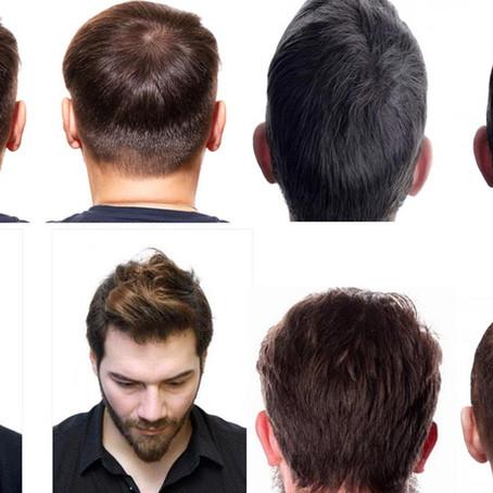 Turkey as a leader in hair transplantation