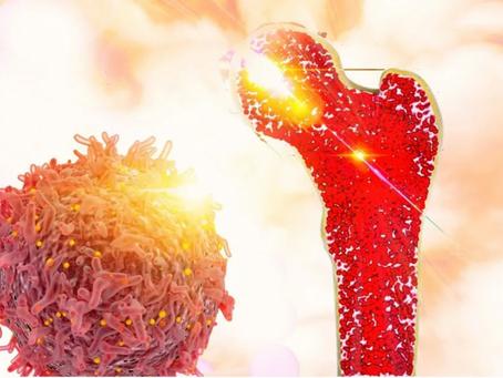 Proton Işın Tedavisi Kas İskelet Tümörlerinde Etkili mi?